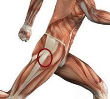 Hip Flexors Pain