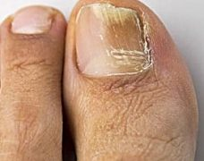 Nail Fungus: Causes, Treatment And Prevention