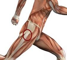 Hip Flexors Pain