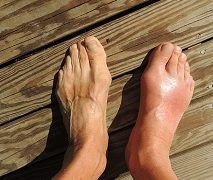 Natural Remedies For Gout – 6 Options You Can Try Today