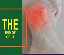 End Of Gout Review – Is Shelly Manning's Guide For You?